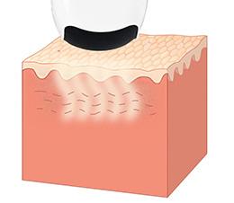 Hifu i Liposonix. głowica.lifting ciała