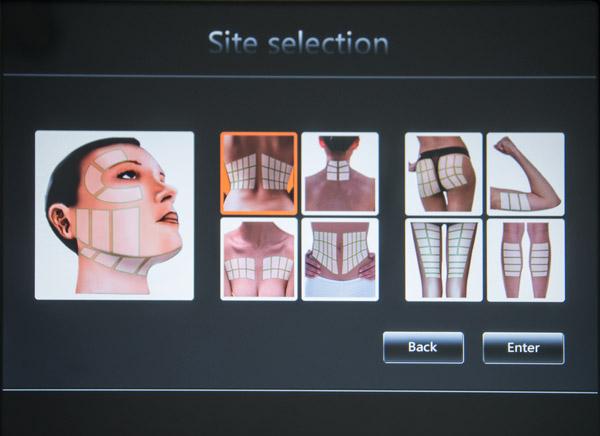 Wybór partii ciała ekranHIFU