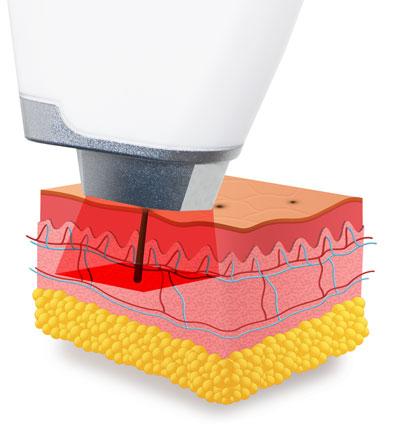 działanie lasera diodowego do depilacji