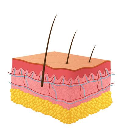 przed zabiegiem depilacji laserowej